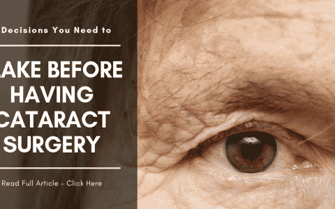 5 Decisions You Need to Make Before Having Cataract Surgery