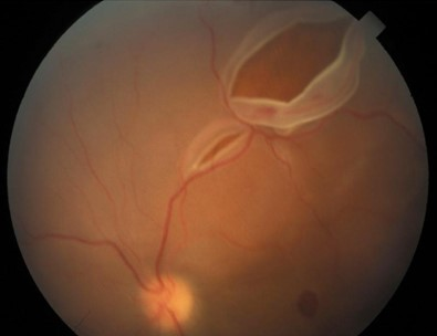 Retinal Tear leading to a detachment.