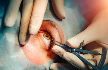 Cataract Removal Is Easy Yet Effective Procedure